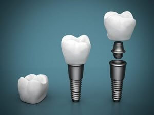 Dental Implants | Dentist Torrensville