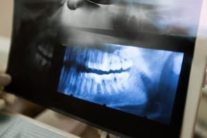 Diseases Of The Jaw Treatment | Dentist Torrensville