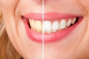 Teeth Whitening | Dentist Torrensville