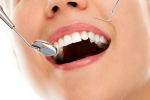 Tooth Fillings in Adelaide | Dentist Torrensville