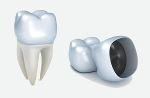 Crowns and Bridges | Dentist Torrensville