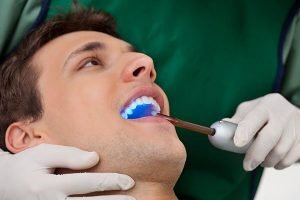 Dental Sealants | Dentist Torrensville