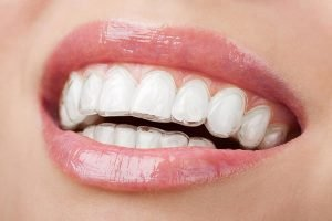 Invisalign | Dentist Torrensville