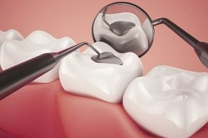 Lost Or Damaged Fillings Crown And Inlay Onlay   Dentist Torrensville