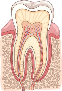 Do I Need Root Canal Treatment | Dentist Torrensville